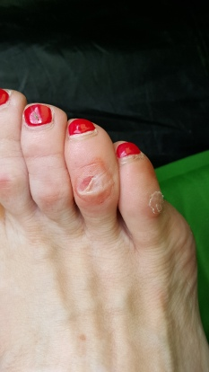 Toes regaining their lady-likeness again.